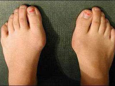 大脚骨常见病因.jpg