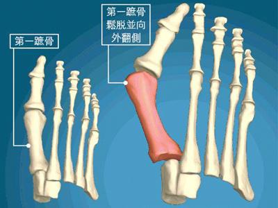 大脚骨是怎样形成的.jpg