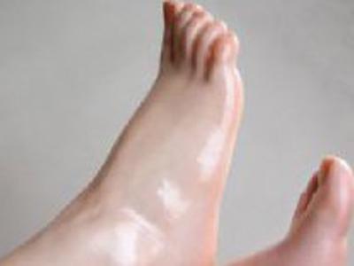 脚拇指外翻如何**.jpg